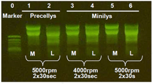Figure 1: Agarose gel electrophoresis of the RNA extracted from torafugu pufferfish.