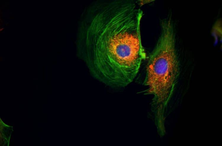 Transfected BPAE cells (GFP, RFP & DAPI F.L.M.), 60X Obj. #LUC-PLFLN60X