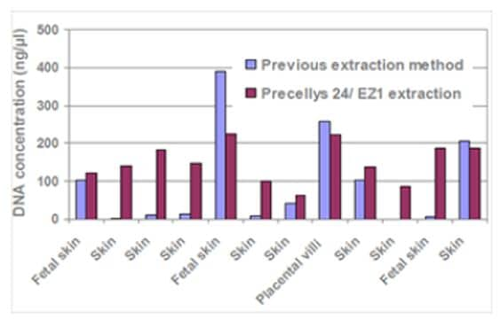 Concentration comparison of DNA extracted from fetal and neonatal tissues with Precellys method and with Proteinase K heating treatment based method (from West Midlands Regional Genetics Laboratory, UK)